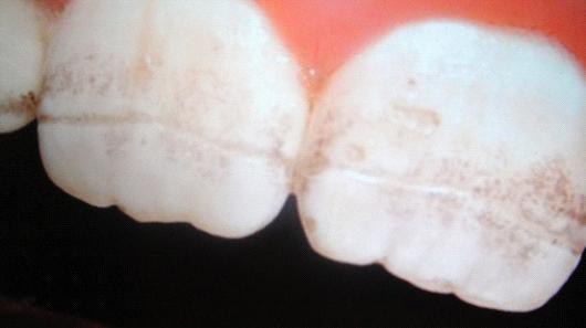 οδοντική βλάβη στήν κοιλιοκάκης