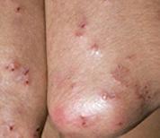 ερπητόμορφος δερματίτιδα